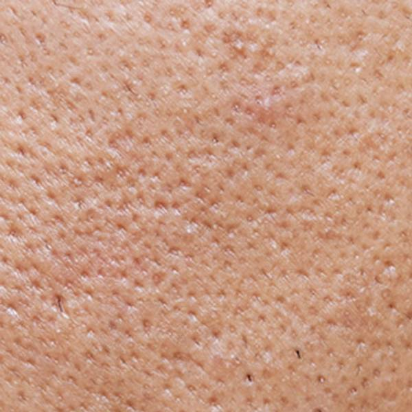 Acne Article - main image